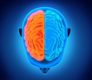 Stroke effects on the brain